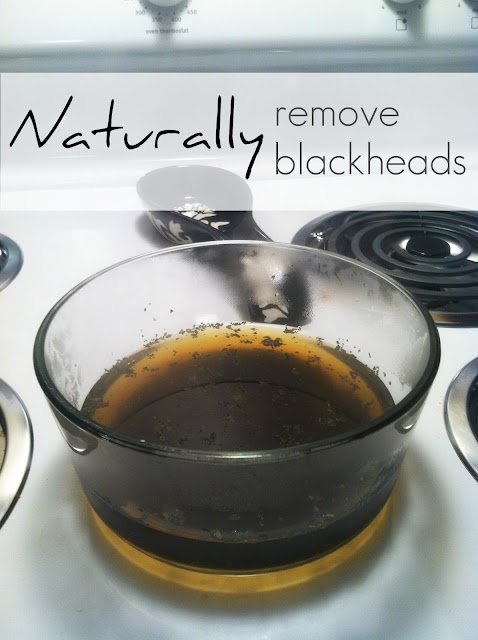 How To Naturally remove those pesky blackheads!